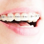 Orthodontics – When And Why?