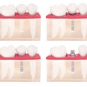 Dental implants — much more than a stopgap