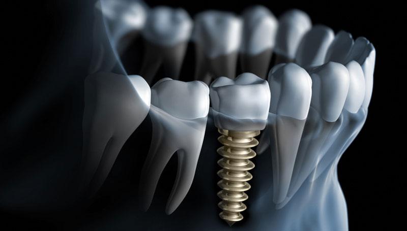cosmetic dentistry implant gumdale